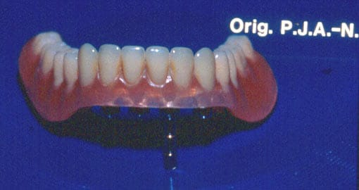 Klippprotese til underkjeve kan erstatte tapte tenner og gi tilbake normal tyggefunksjon.