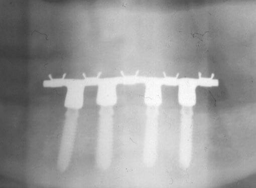 Røntgen av tannimplantater i underkjeve med trykknappløsning.