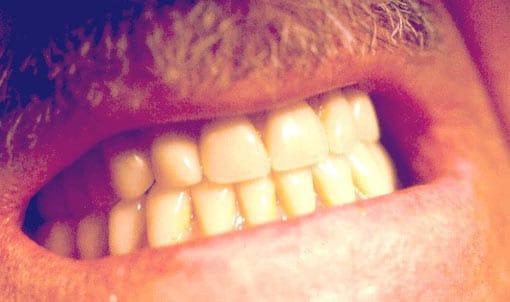 Etterbilde av pasient med tannprotese i underkjeve.
