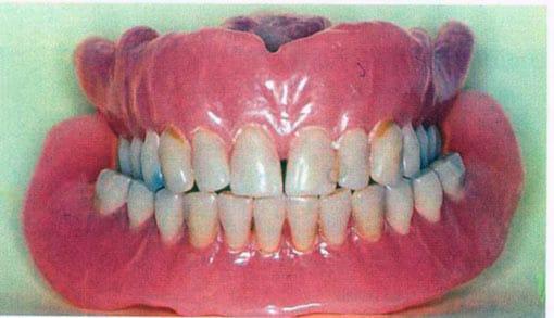 Et gebiss som kan tas ut er også en velfungerende tannprotese.