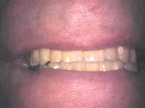 Tannimplantater ser ut som egne tenner og gir naturlige resultater.