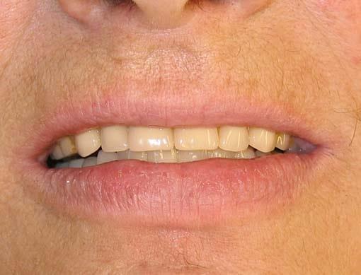 Etter at prosessen er fullført har pasienten fått tilbake smilet med velfungerende tenner, takket være tannimplantater.
