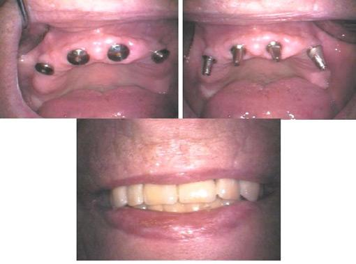 Tannimpantatskruer er festet i tannkjøttet, fester til protesen anordnes i skruene før endelig tannprotese skrues fast.